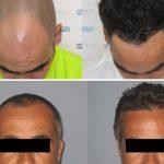 Greffe cheveux DHI Tunisie photos avant après