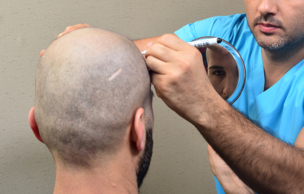 greffe cheveux DHI prix Tunisie