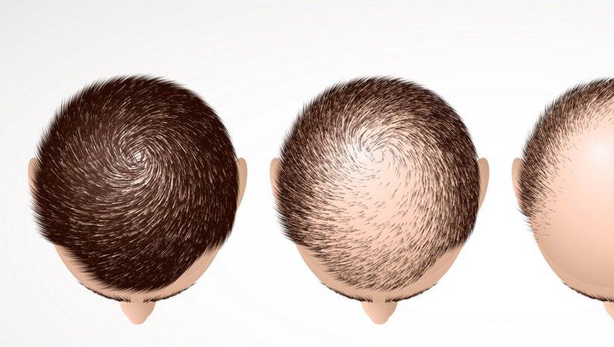 traitement alopécie tunisie