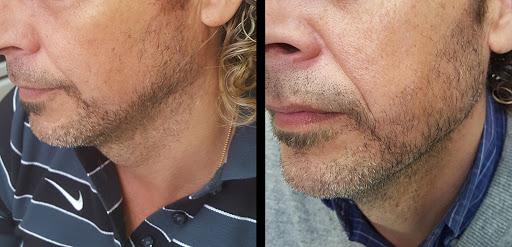 greffe de barbe Tunisie photos avant apres