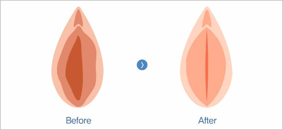vaginoplastie