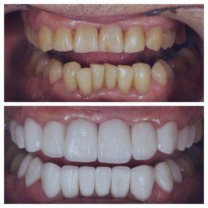 facette-dentaire-avant-apres